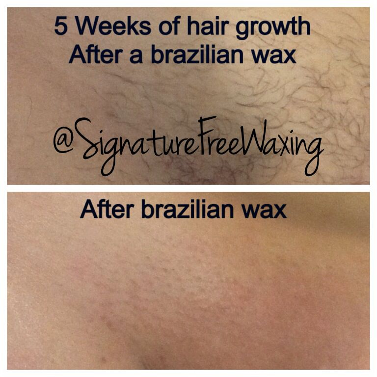 Before and after brazilian wax