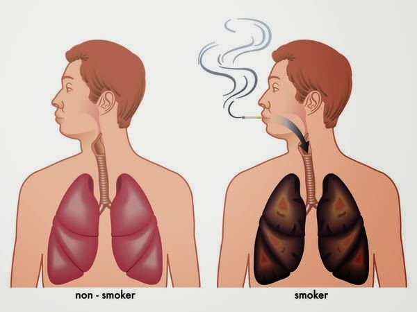 How to detox your lungs after smoking