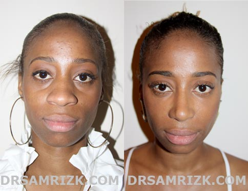 Rhinoplasty african american before and after