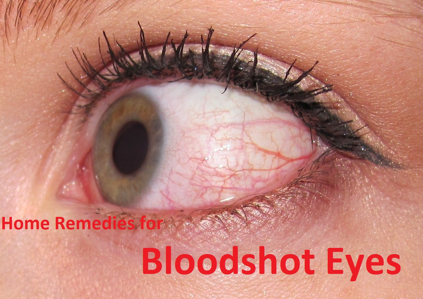 Home remedies for bloodshot eyes