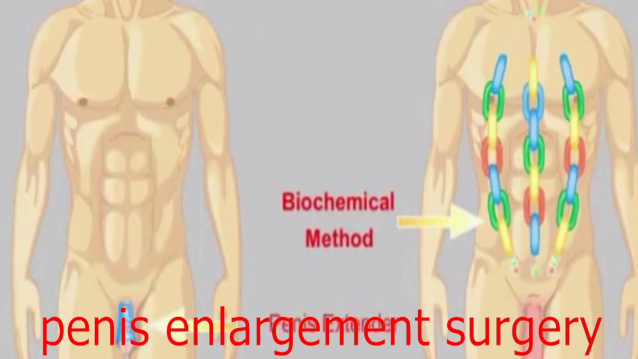 How much is male enhancement surgery